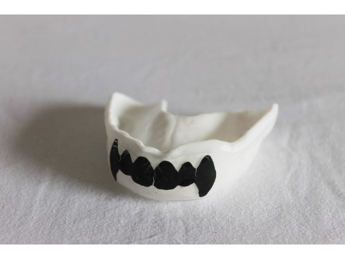 Protèges dents